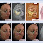 Environ Skin Scanning