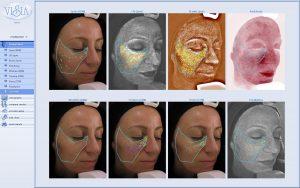 Dermalogica environ facials 300x188 - Environ Skin Scanning