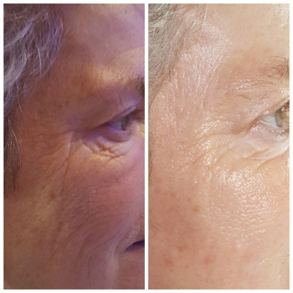 facials electrical treatments environ dermalogica 1 1024x1024 - Facials